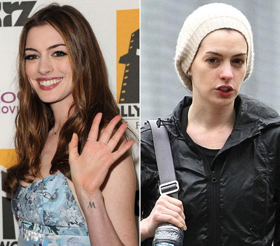 Mindenkinek lehetnek rossz napjai, ezalól pedig Anne Hathaway sem kivétel, akit talán még sohasem láthattunk ilyen csapzottnak.