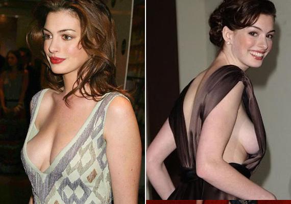 Itt szerencsésen megúszta a villantást, de így is majdnem kiesett a cicije a ruhájából. Anne Hathaway bármennyire jó színésznő, a ruhaválasztásban elkélne neki egy segítő kéz.