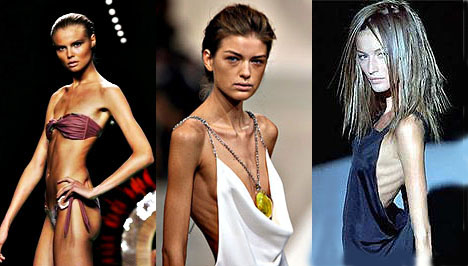 Hogyan válhatunk anorexikussá? Igazi történetek. Fotók a fogyás előtt és után - Fásultság February