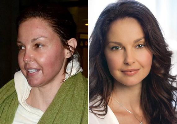 A színésznő tagadja a plasztikázást, szerinte egyáltalán nem változott meg az arca, ugyanúgy néz ki, mint eddig.