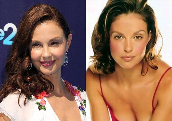 Ashley Judd rendszeresen látogatja a plasztikai sebészt, alig van egy pár nevetőránca a szeme körül, a bőre pedig feszes. A jobb oldali képen sem a természetes vonásai vannak már, a száját, az orrát kezdőként megcsináltatta.