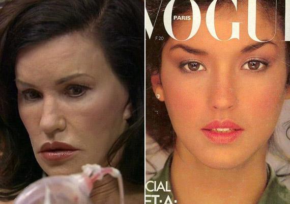Janice Dickinson szereti magát úgy eladni, mint a világ első topmodelljét. Az 59 éves modell-műsorvezető eredeti arcvonásait már felfedezni sem lehet, ám ő még több műtétet végeztet magán.