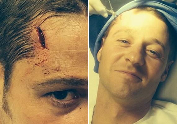 - Gyerekek, ne üssétek a fejeteket betonoszlopba! - ezzel az aláírással posztolta Instagram-oldalán Ben McKenzie azokat a fotókat, ahol az orvosok éppen ellátták a sérülését. A színész a Gotham című sorozat forgatásán sérült meg.