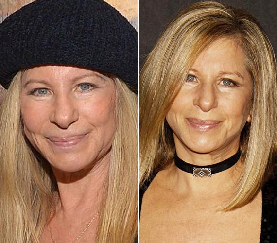 A bal oldali kép most készült a színésznőről, akinek egyáltalán nem látszik meg a kora az arcán.