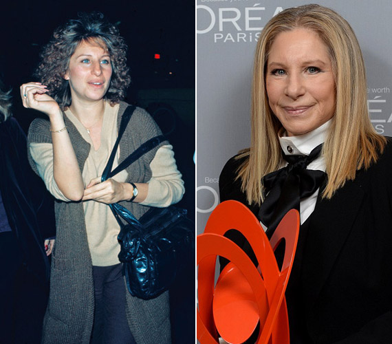 Barbra Streisand nem híve a mesterséges beavatkozásoknak, elfogadja a ráncait, és így is jól érzi magát.