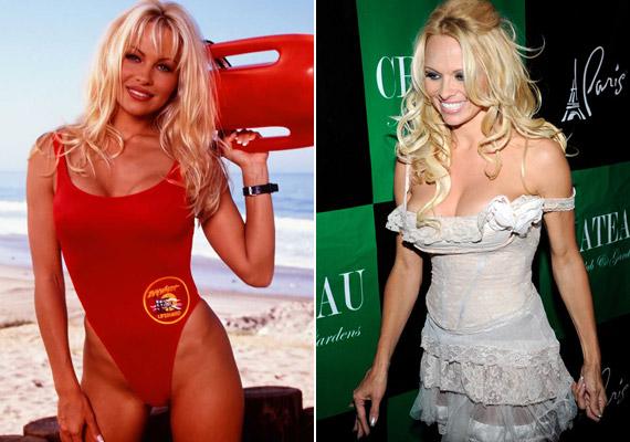 Pamela Anderson a Baywatch legismertebb színésznője, aki azóta is elsősorban dús kebleivel hódít, de az arcán is felfedezni a plasztika nyomait.