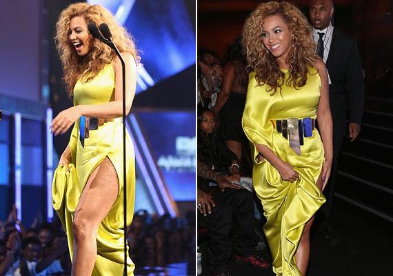Júliusban a BET Awardson ebben a sárga, csípőig felsliccelt ruhában mutatta meg gömbölyded alakját.