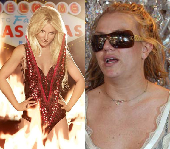 Mintha két ember lenne, hatalmas a különbség. A bal oldali képen látszik, hogy az énekesnő elképesztő formában van.