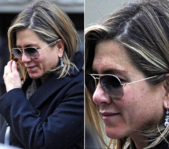 A Jóbarátok sztárja, Jennifer Aniston foltos arccal lépett az utcára.