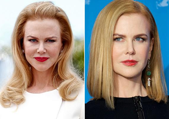 Nicole Kidman a legjobb példa arra, hogy az öregedéstől való félelem elveszi az ember józan eszét. A szép színésznő egy ideig olyannyira megszállottja volt a szépészeti beavatkozásoknak, hogy szinte felismerhetetlenné torzult az arca. Akkor jött rá, mekkora hibát követett el, amikor már senki nem akart vele dolgozni művi megjelenése miatt. Azóta óvatosabban bánik a botoxszal, ami jól látszik friss képein is.