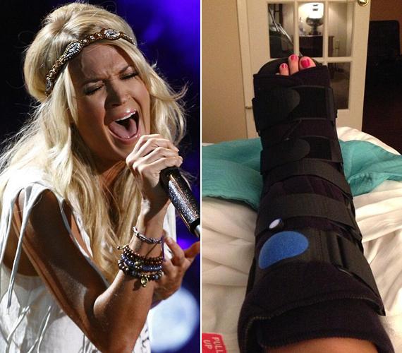 Carrie Underwood a Twitteren osztotta meg gipszben pihenő lábáról a képet, és hozzáfűzte: soha többé nem fog ugrálni ilyen magas sarkú cipőben. Eséséről a videót a linkre kattintva megnézheted.