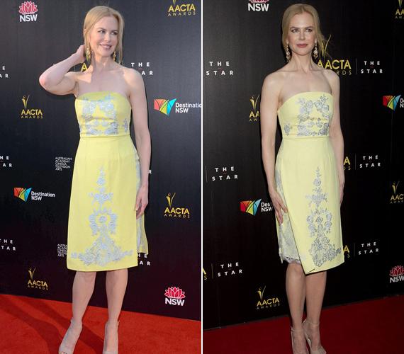 Nicole Kidman ezúttal egy visszafogott, sárga, hímzéssel díszített ruhába bújt.