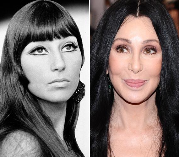 Nagyon úgy tűnik, Cher hiába erőlködik, igazán már nem tud mosolyogni, az arca nem engedelmeskedik. A régi fotón ráadásul teljesen máshogy néz ki, mint most.