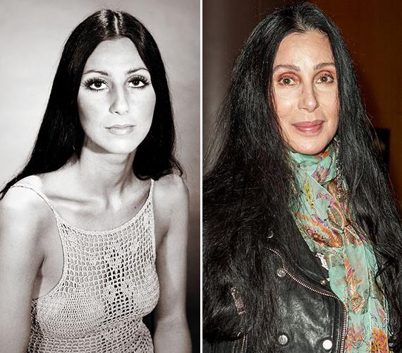 Egyértelműen látszik, hogy az énekesnő túlzásba vitte a plasztikát, sőt, a botoxot is. Talán jobban tette volna, ha a természetre bízza magát, és úgy öregszik meg.