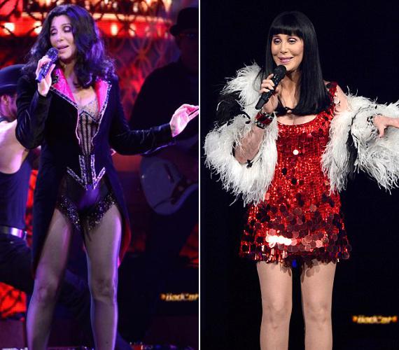 Cher sohasem rejtette véka alá, hogy többször feküdt már plasztikai sebész kése alá.
