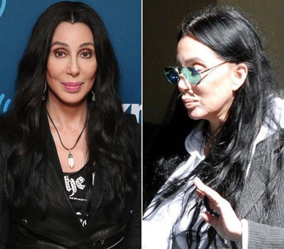 Az idő vasfoga az énekesnőt sem kíméli, aki mindent megtesz, hogy megőrizze arcának fiatal vonásait, a plasztikai sebészetet sem kerüli.