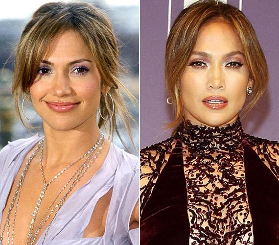 Jennifer Lopez bal oldali képe 2003-ban készült, a jobb pedig 2014-ben.