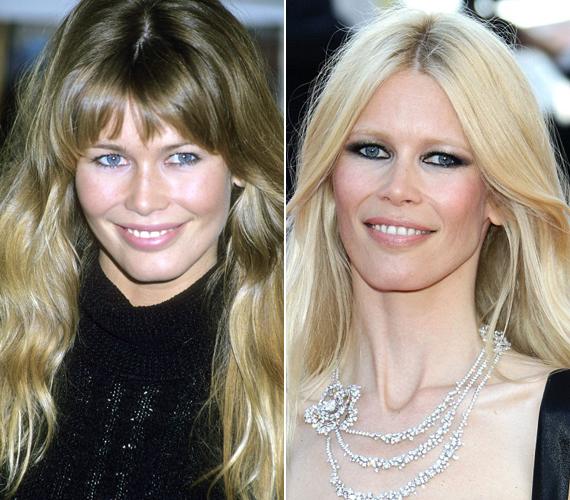 A bal oldalon látható fotó 1993-ban készült az akkor még világosbarna tincsekkel hódító Claudiáról, míg a jobb oldali egy friss kép. A modellről az a hír járja, hogy Nicole Kidmanhez hasonlóan botoxkezelésre jár, mert nem szeretne ráncokat látni az arcán.