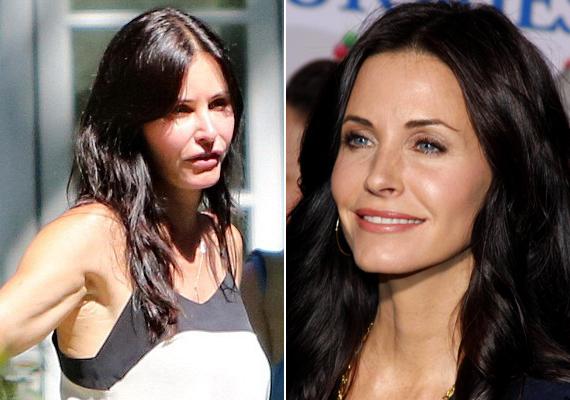 A 49 éves színésznő nem tudja elviselni, ha egyetlen apró ránc is van az arcán, most azonban túllőtt a célon.