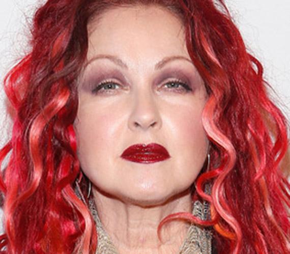 A szakértők szerint az arcát botoxoltatja, hiszen a bőre 60 éves kora ellenére olyan, mint a porcelán, ám a nyakán már látszanak az öregedés nyomai.