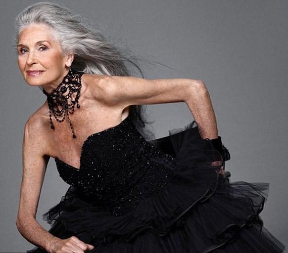 Nem botoxol, viszont a divatos öltözködéssel éveket fiatalít külsején.