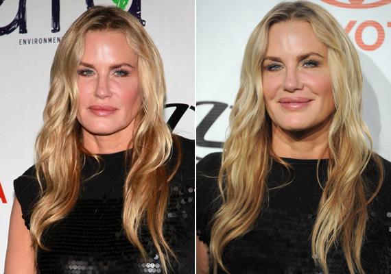 2013-ban az Environmental Media Awards gáláján. A színésznő mimikája szinte teljesen eltűnt, alig tudja mozgatni az ajkait.