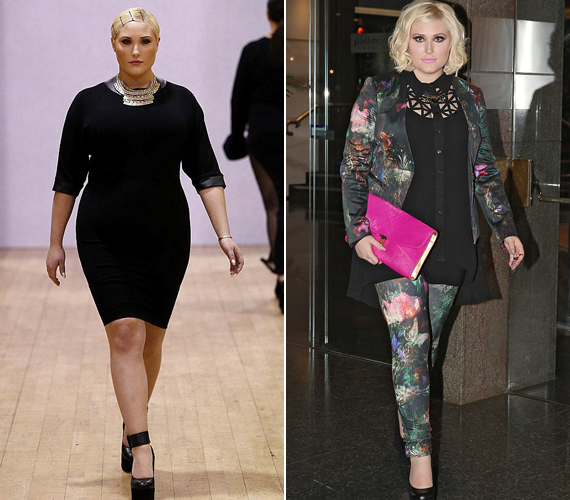 Szerinte a divatvilág a gebe modellekkel rossz üzenetet közvetít a lányok felé.