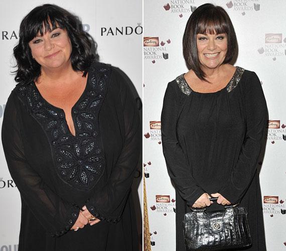 Dawn French testsúlya 2011 júniusában még negyedmázsával volt több, mint most a hétvégén.