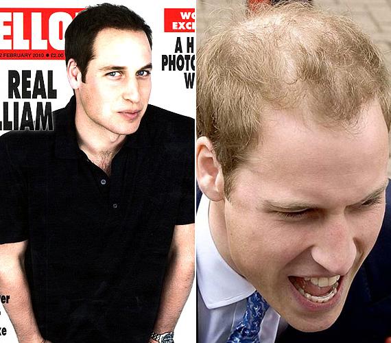 Vilmos herceg biztosan örülne, ha a valóságban ilyen dús haja lenne.