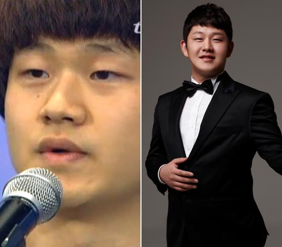 Choi Sung Bong hajléktalanként jelent meg a koreai X-Factorban. A fiú háromévesen árvaházba került, de megszökött onnan, mert folyamatosan verték. Ötéves kora óta élt az utcán, lépcsőkön és nyilvános WC-kben aludt tíz évig.