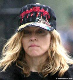 Madonna igen rossz állapotban