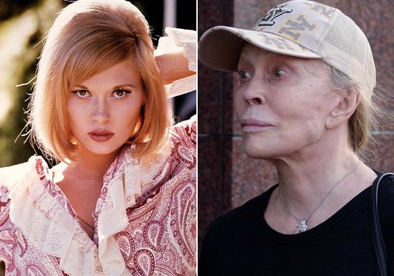 A Bonnie és Clyde dögös színésznője látott már szebb napokat is. A műtétek miatt a szeme és szája becsukása is komoly gonddal jár.