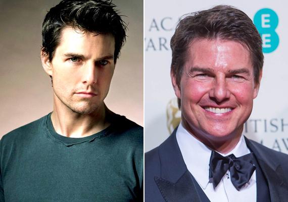 Tom Cruise mindenkit meglepett, amikor új arcával megjelent a BAFTA-díjátadón. Valószínűleg itt is a botox a ludas, a színész arca olyan lett tőle, mintha egy felfújt lufi.