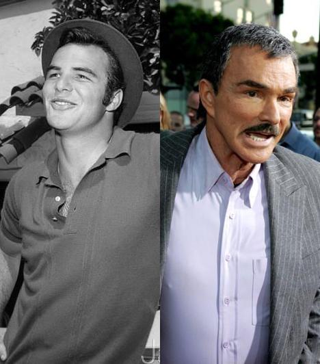 Burt Reynolds                         A népszerű amerikai színész idén 79 éves, bizarrul szétoperált arcát látva azonban feltehetően ezt senki nem mondaná meg róla.                         Kapcsolódó képgaléria:                         Sztárok plasztika előtt és után »