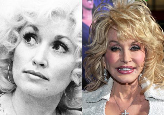 Dolly Parton maga sem tudja megmondani, hányszor végeztek már rajta esztétikai beavatkozásokat, azonban viccesen megjegyezte, hogy ha még egy arcfelvarrást csinálnának rajta, biztosan szétrepedne a bőre.