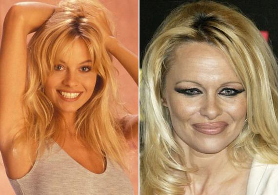 Pamela Anderson a 90-es években szebb volt, mint a műtétjei után. Mellnagyobbító beavatkozását ő is megbánta és kisebbre cseréltette az implantátumot.