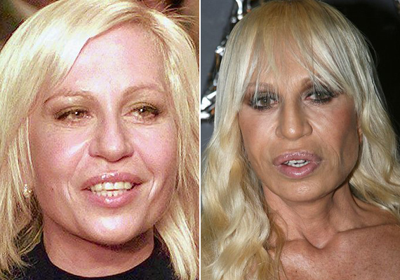 Donatella Versace szájait olyannyira felpumpálták, hogy már összezárni sem tudja őket. 21 évvel ezelőtt kezdte a plasztikáztatást, azóta pedig megszámlálhatatlan beavatkozása volt.