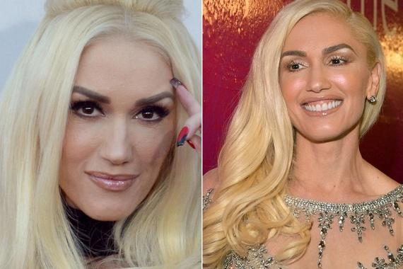 Gwen Stefani az idei Billboard Music Awardson döbbentette le a rajongóit új külsejével. Sokak szerint hét évvel fiatalabb partnere, Blake Sheldon miatt szeretett volna ő is megfiatalodni egy kicsit.