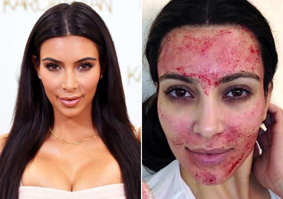 Kim Kardashian a saját vérétől szépül: ilyenkor akupunktúrás tűkkel szurkálják meg a páciens arcát, a vérplazmája pedig - állítólag - csodákat művel a bőrrel.