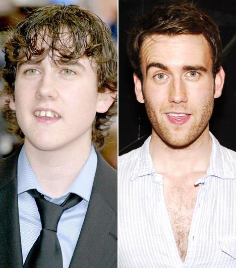 Matthew Lewis                         Miből lesz a cserebogár, mondhatnák a Harry Potter Neville Lonbottomjának képeit látva.