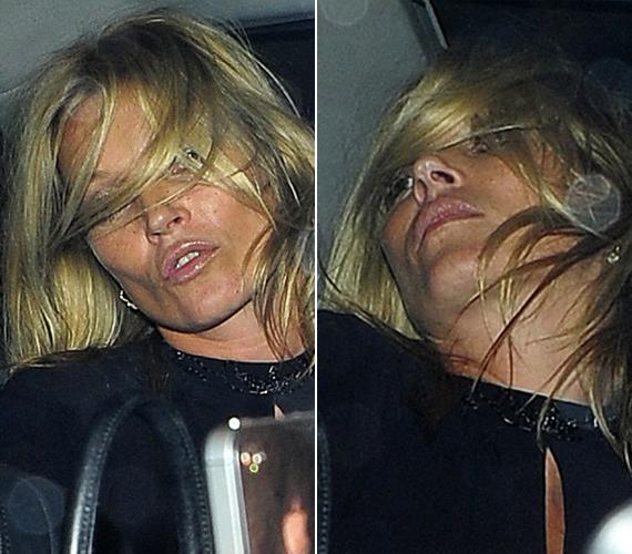 Nemcsak őt járt így, többek között Kate Mosst is láthattuk már illuminált állapotban.