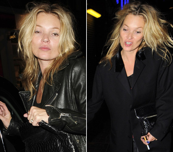 Az egykor csinos modell egyre többször botránkoztatja meg a nyilvánosságot viselkedésével.