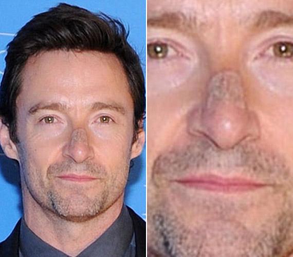 A színész felesége unszolására ment csak el orvoshoz, szerencsére még időben, bár a műtét után még így is egy csúnya seb maradt az arcán.