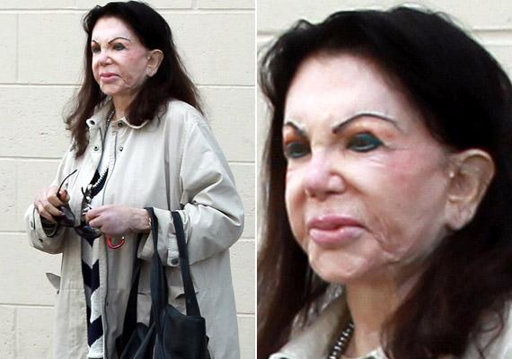 Jackie Stallone azt állítja, azért nincs ránc a homlokán még 93 évesen sem, mert jó géneket örökölt, és egyáltalán nem a botox miatt.