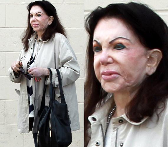 Jackie Stallone azt állítja, azért nincs ránc a homlokán még 92 évesen sem, mert jó géneket örökölt, és egyáltalán nem a botox miatt.