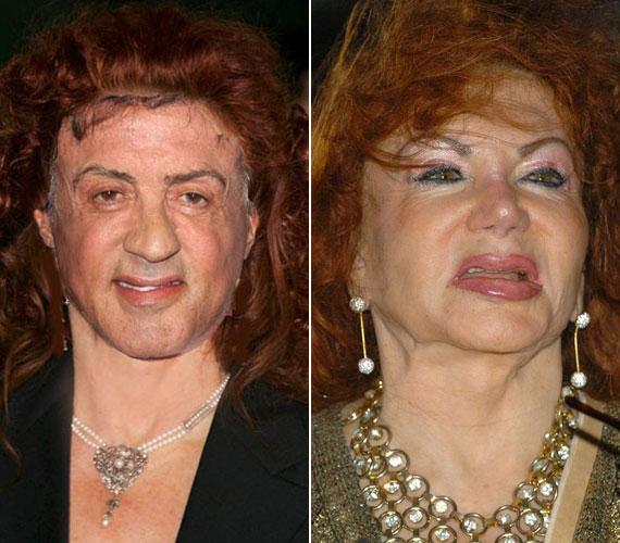 Sokan azzal viccelődnek, hogy fiát, Sylvester Stallonét is megfertőzte a plasztikai műtétek iránti rajongásával, hiszen az akciósztár arca is egyre inkább egy gumifiguráéra hasonlít.