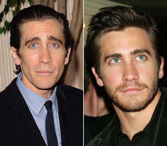 Jake Gyllenhaal arca beesett a rengeteg fogyástól, és sokkal öregebbnek tűnik.