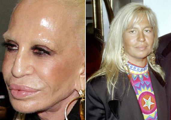 Donatella Versace sem aratott osztatlan sikert kedden újraszabott arcával.