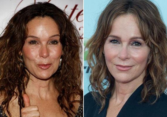 Jennifer Grey pár éve még szinte felismerhetetlen volt a bal oldali fotón, friss képén azonban már szembetűnő a változás. Ráncai visszatértek, és a szemeit is teljesen ki tudja már nyitni.