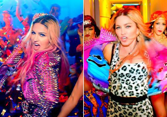 Az 57 éves Madonna még mindig kamasznak érzi magát, a videoklipjeiben is igyekszik nagyon fiatalos hatást kelteni. A Bitch, I'm Madonna című slágerhez készült klipben is leopárdmintás miniruhában rázza a fenekét.